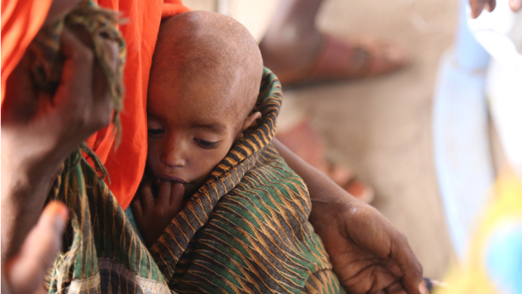 A malnourished child in Somalia