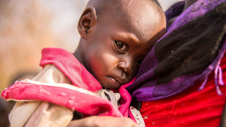 East Africa famine - a malnourished child